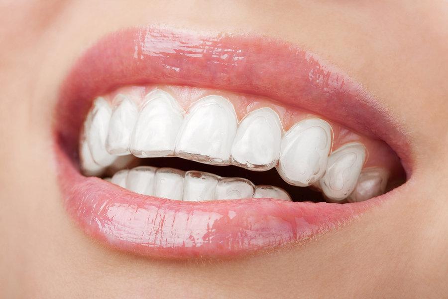 Invisalign from mcElhinney & Brea Orthodontics
