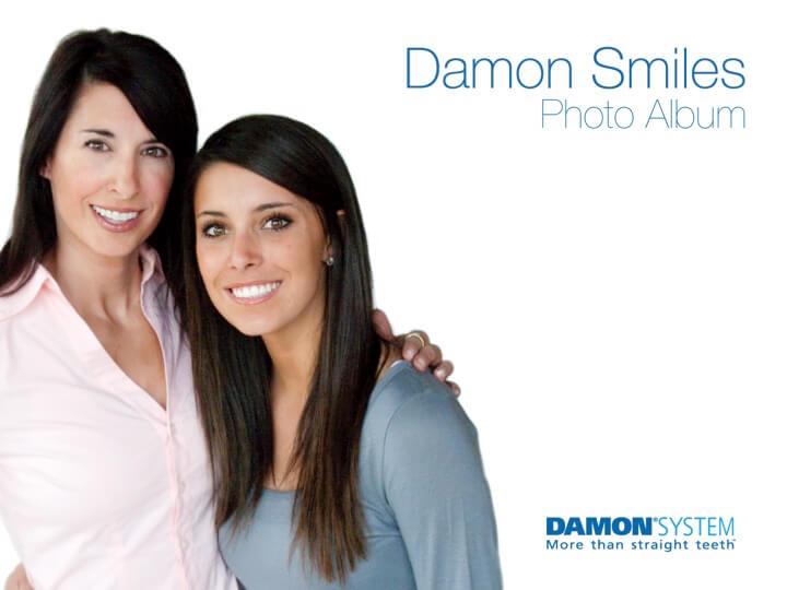 Damon Slide-1