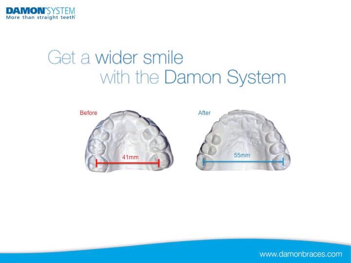 Damon Slide-11