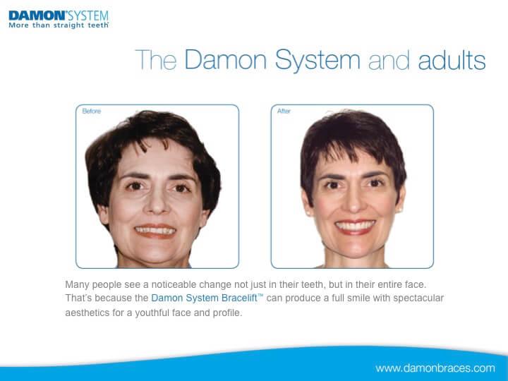 Damon Slide-21
